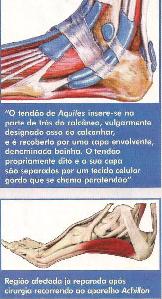 Tendão-de-Aquiles